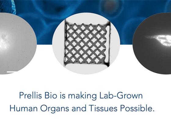 3Dプリンティング技術で人工臓器の開発を目指すPrellis Biologics